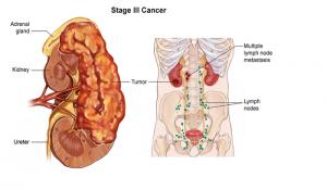 Những yếu tố nguy cơ dẫn đến ung thư thận