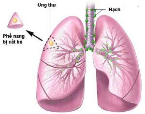 Ung thư phổi có nên sử dụng CumarGold Kare