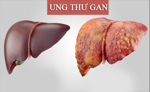 Bệnh nhân UT gan có nên sử dụng CumarGold Kare không?