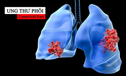 Bệnh nhân ung thư phổi có nên sử dụng CumarGold Kare không?