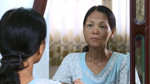 Chị Luyện gầy gò, sạm đen sau những ngày điều trị liên tục năm 2014